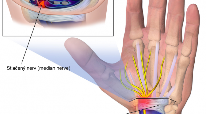 Carpal_Tunnel_Syndrome